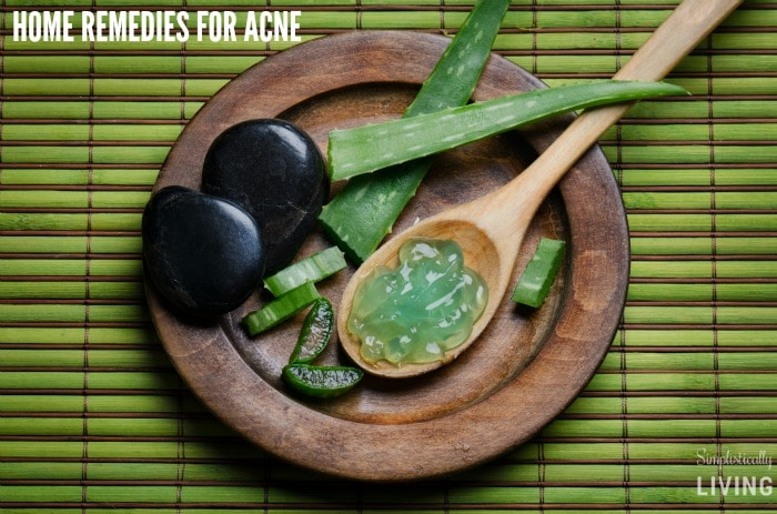 home remedies for acne featured